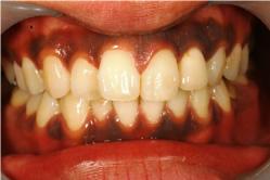 歯ぐきの黒ずみは綺麗に落ちます